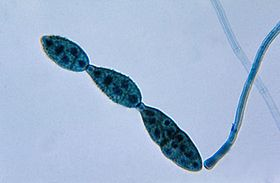 Chain of conidia of a Alternaria sp. fungus PHIL 3963 lores.jpg